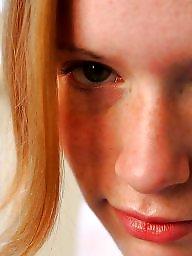 Redheads, Hairy redhead