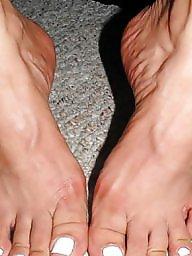 Leg, Amateur feet