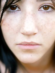Freckles, Teen facial