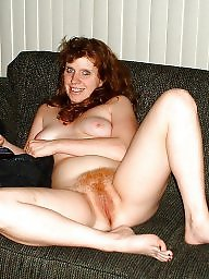 Redhead, Hairy redhead, Redheads, Freckles, Hairy redheads