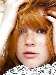 Redheads, Freckles