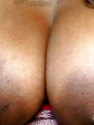 Big nipple, Areola