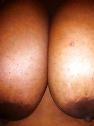 Areola, Nipple