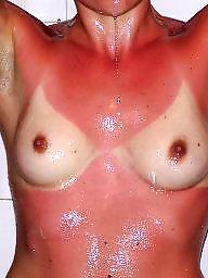 Nipple, Stolen