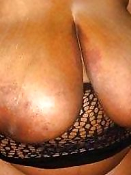 Areola, Big nipples