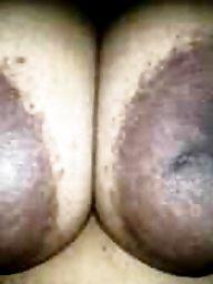 Nipple, Areola